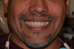 Willian after treatment - Highland Dental Clinic in Lakeland