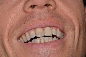 Jeremy after treatment - Highland Dental Clinic in Lakeland