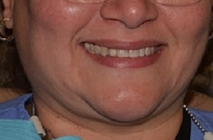 after treatment Betty - Highland Dental Clinic in Lakeland